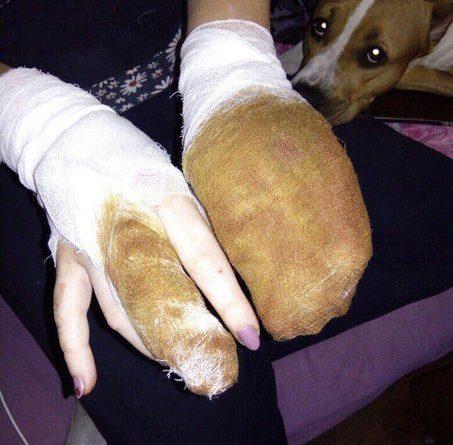 напала собака на Широтной